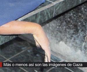 Telesur usa imágenes de morgues venezolanas para ilustrar sufrimiento del pueblo palestino