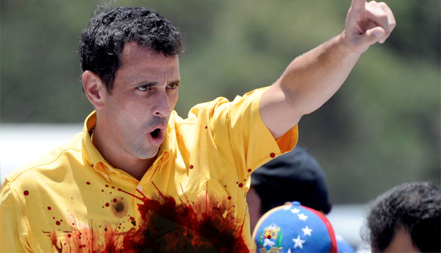 Roban órganos vitales de Capriles antes de llegar a evento en Aragua