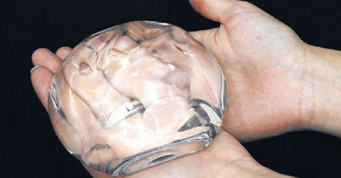 Escasez de prótesis mamarias... En serio, hay escasez de prótesis mamarias