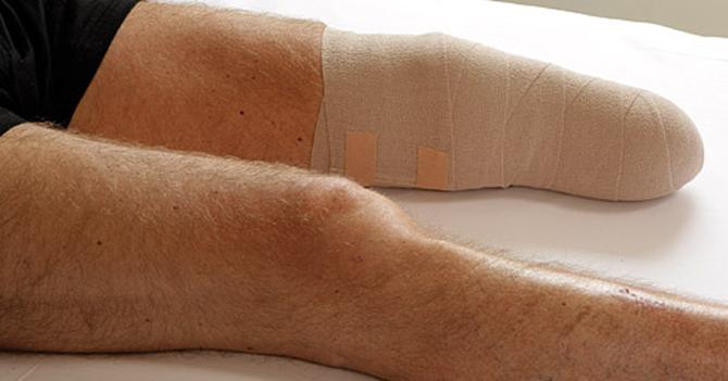 Crisis de salud hace que doctor le ampute la pierna a paciente con uñero