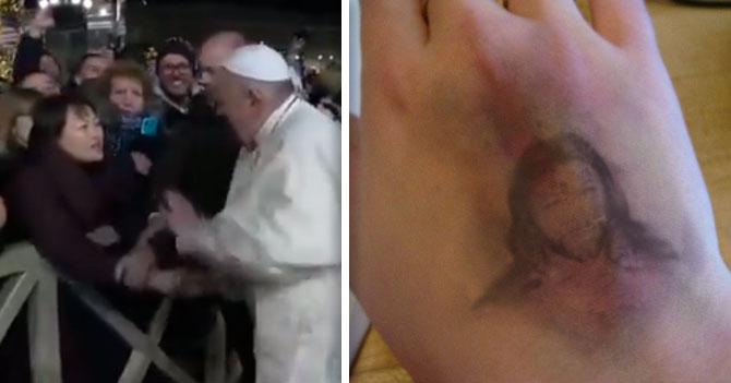 Jesucristo aparece en moretón de mano que golpeó el Papa