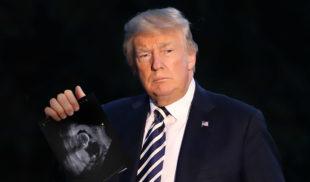 Trump finge embarazo para que no lo boten de la Casa Blanca