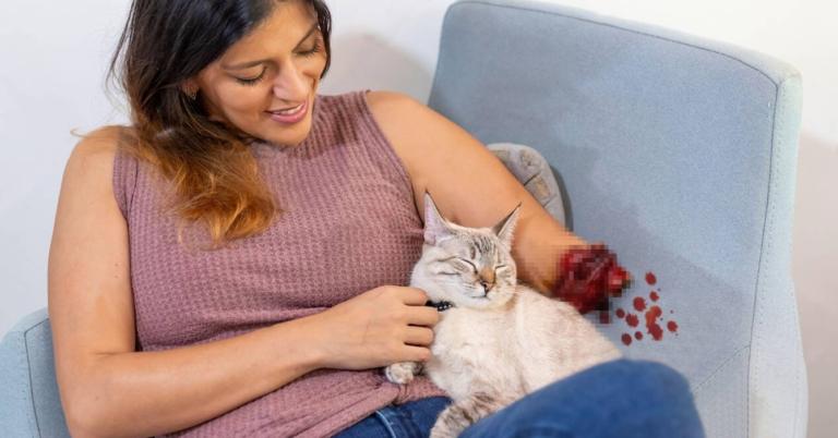 Chama asegura que su gato le amputó el brazo porque la ama